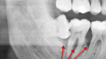 Periodontal pocket related with impacted wisdom tooth