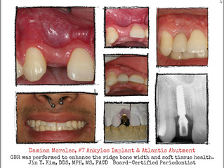 Implant therapy in missing lateral incisor