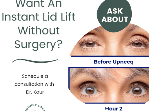 Want an instant eyelid lift without surgery?