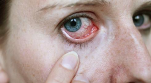 Eye Emergency Services - Bonney Lake, WA