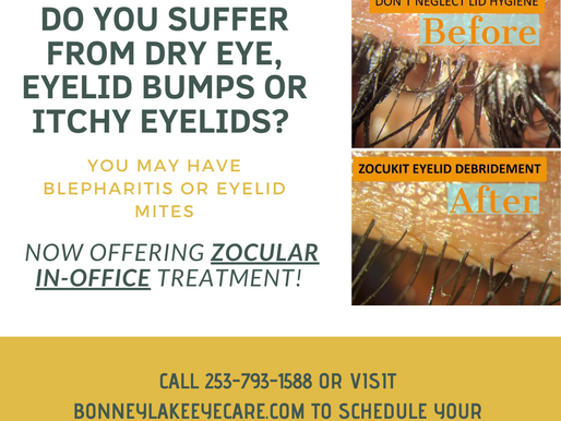 Zocular ZEST Treatment For Dry Eyes and Eyelid Mites!