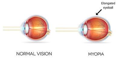 What is myopia?