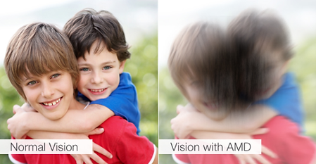 Macular Degeneration Vision Simulation .