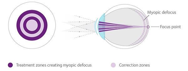 MiSight Myopia Management Contact Lenses - Bonney Lake, WA