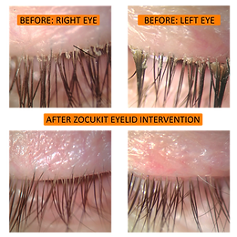 Demodex eyelid mites being treated with in-office ZEST treatment