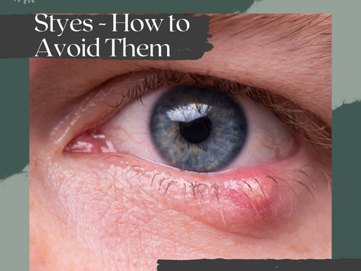 How to Prevent and Treat a Stye