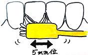 Tb front teeth.jpg