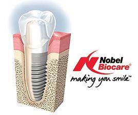 nobel-replace-implant-2.jpg