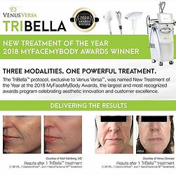 Mt Kisco NY Facials, IPL Photofacial, RF Skin Tightening, RF Wrinkle Reduction, Photorejuvenation
