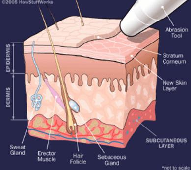 Кристаллическая дермоабразия в кременчуге