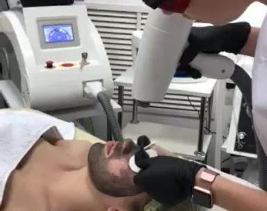 Лазерный карбоновый пиллинг