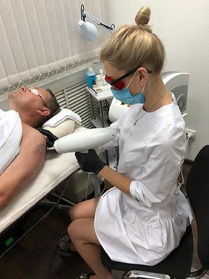 лазерное удаление татуировок в кременчуге