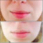 лазерная косметология кременчуг