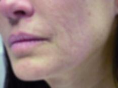 Smartxide Dot Casi Clinici B1.jpg