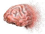 bigstock-Brain-Disease-Or-Destruction-27