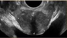 diagnosi_iperplasia_prostatica_benigna.j