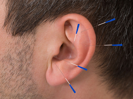 Ušní akupunktura, aurikuloterapie, má rychlé účinky