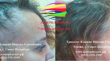Плазматерапия для волос или мезотерапия плазмой