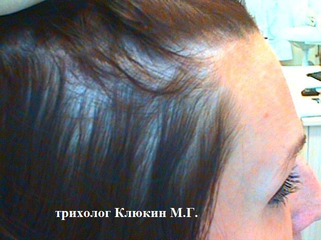 трихолог спб, хороший трихолог, клюкин максим, трихолог клюкин, лечение выпадения волос