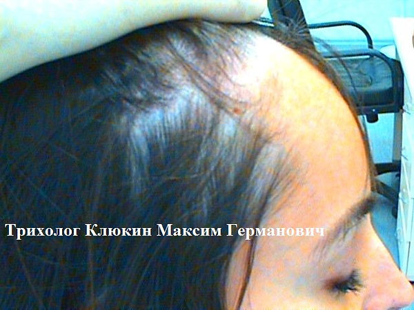 трихолог спб, трихология спб, лечение волос спб, хороший трихолог