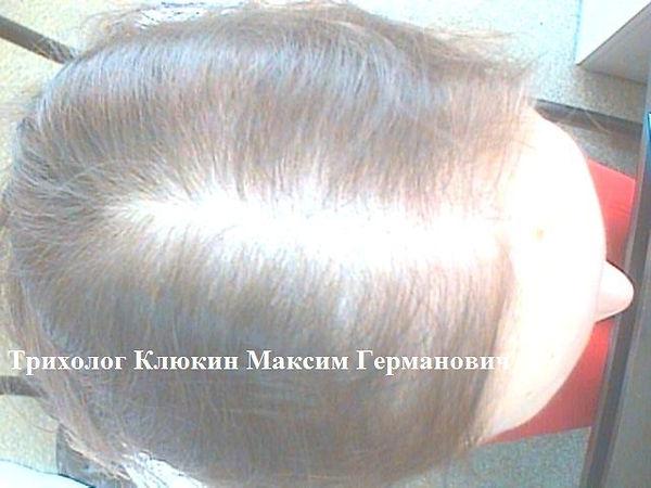 трихолог спб, лечение волос спб, трихолог клюкин, трихолог москва