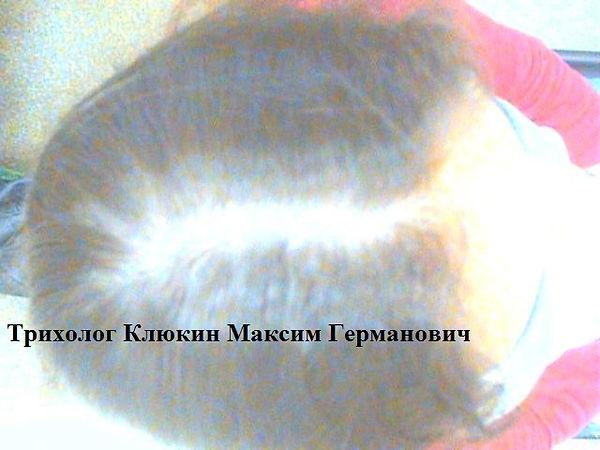 трихолог спб,  лечение волос спб, восстановление волос спб