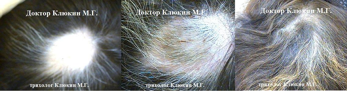 трихолог спб, хороший трихолог спб, лечение волос, трихолог клюкин,  горквд, клиника лечения волос