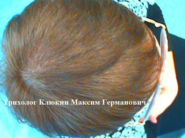 трихолог спб, трихология спб, лечение волос спб, клиника лечения волос