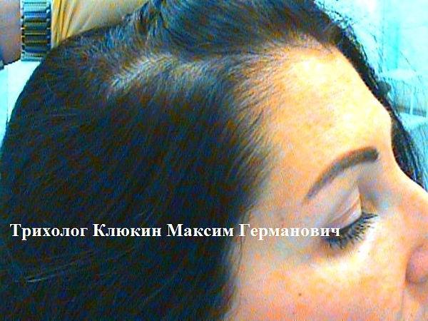 трихолог спб, трихолог, хороший трихолог,  лечение волос спб