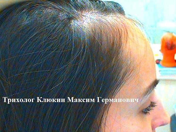 трихолог спб, трихология спб, лечение волос спб, хороший трихолог, трихолог москва