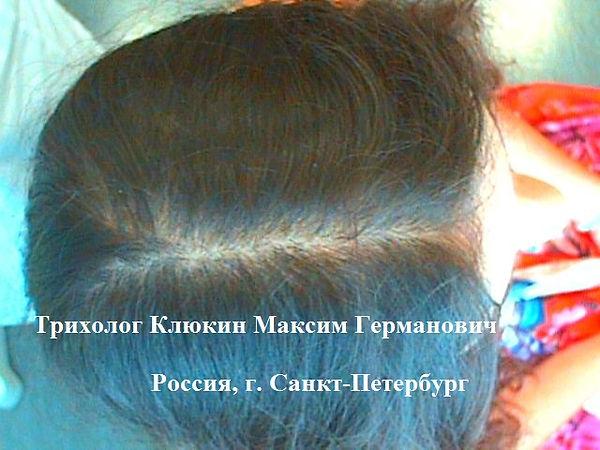 трихолог спб, хороший трихолог, трихолог, трихолог клюкин, лечение выпадения волос