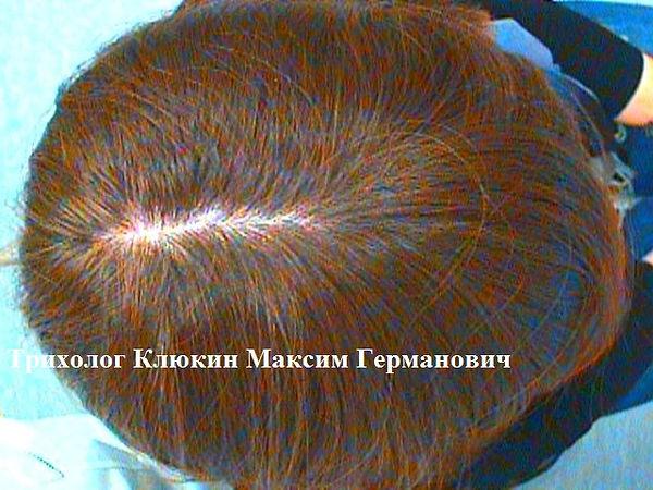 трихолог спб, лечение волос спб, клюкин максим германович
