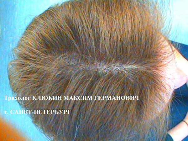 трихолог спб, хороший трихолог, лечение волос, лечение волос спб