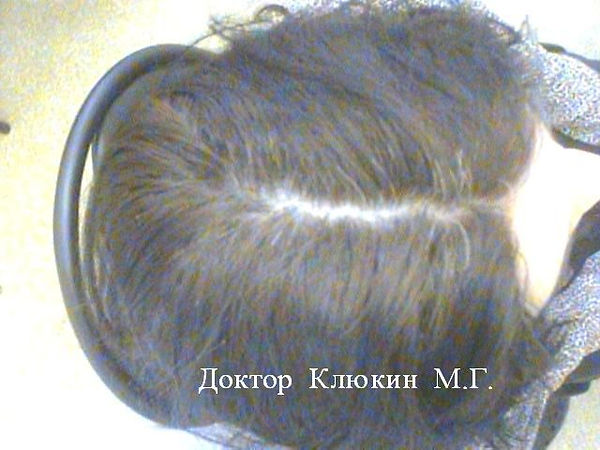 трихолог спб, трихолог, хороший трихолог,  лечение волос спб, трихолог клюкин