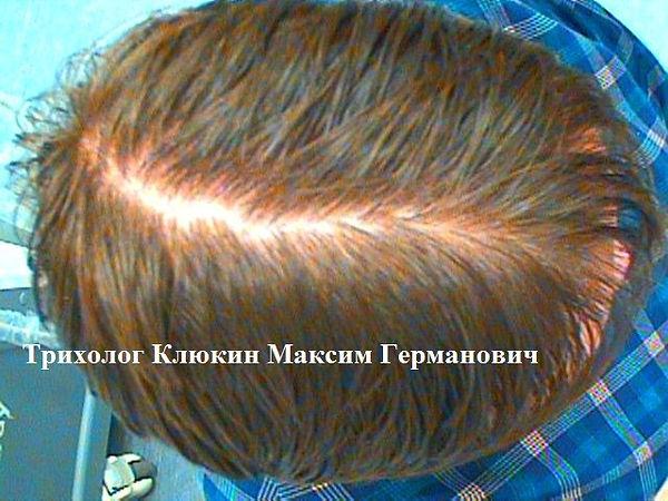 лечение волос, центр доктора клюкина, трихолог клюкин, клиника лечения волос