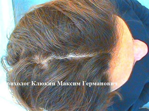 трихолог, трихолог спб,лечение волос, мезотерапия спб, клюкин