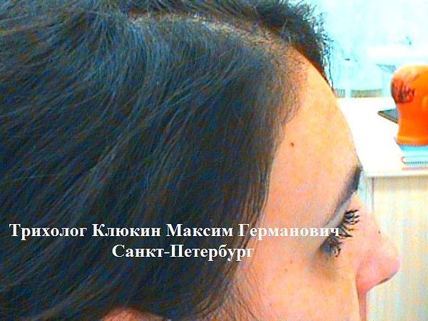трихолог спб, хороший трихолог спб, лечение волос, трихолог клюкин