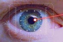 netvliesscan, OCT-scan, Optometrie, netvliesonderzoek, Zeiss, Multifocaal, Varilux, contactlenzen, brilmode, zonnebrillen