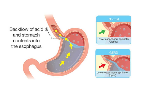 Showing how the acid reflux develops