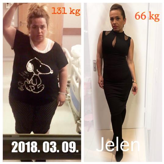Izabella 2018-ban és 12 hónappal később