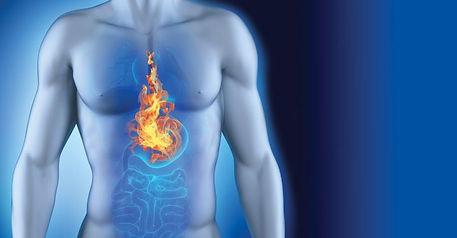 Acid reflux, chest