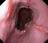 Reflux oesophagitis