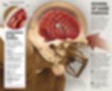 Concussion Management Concussion Statistics