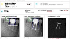 Novo Produto de Machine Learning Detecta Fraudes em Odontologia