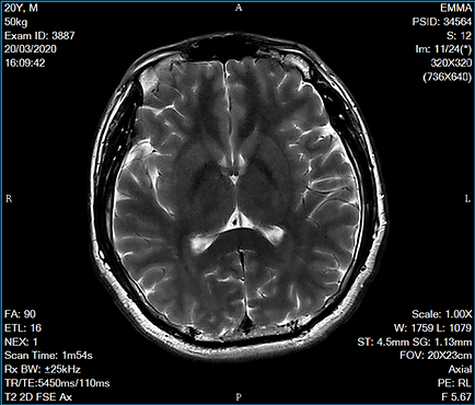 emma-ethan-brain-mri-scan-01.png