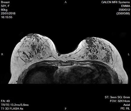 Galen 1.5T Breast MRI Dicom