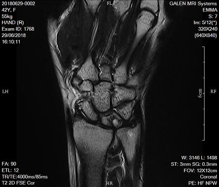 Wrist T2 2D FSE Cor.png