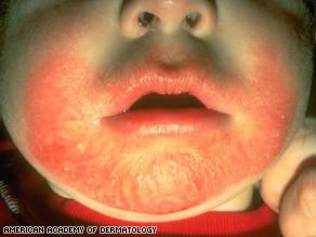 art.eczema.baby.face.aad