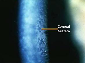 Corneral Guttata