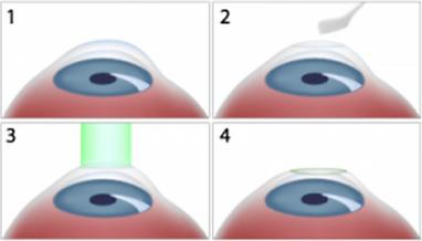 Technique du PKR, laser Excimer